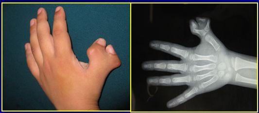 2 岁女孩多指似「蟹钳」,儿医专家为她完美「并指」