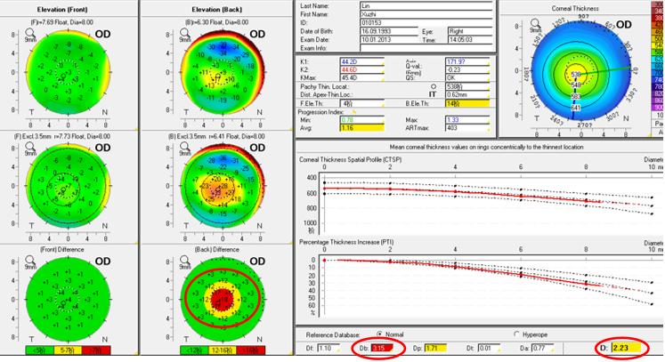 广西首台三维眼前节评估测量系统 Pentacam AXL 成功落户柳州市红十字会医院