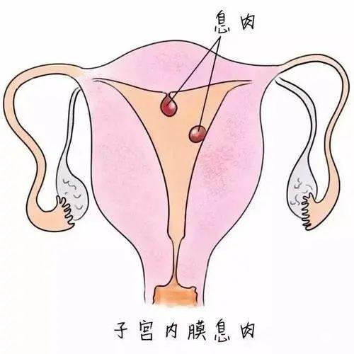 仅 4 颗窦卵泡+重度巧囊+宫腔环境恶略,竟然试管婴儿一次好孕