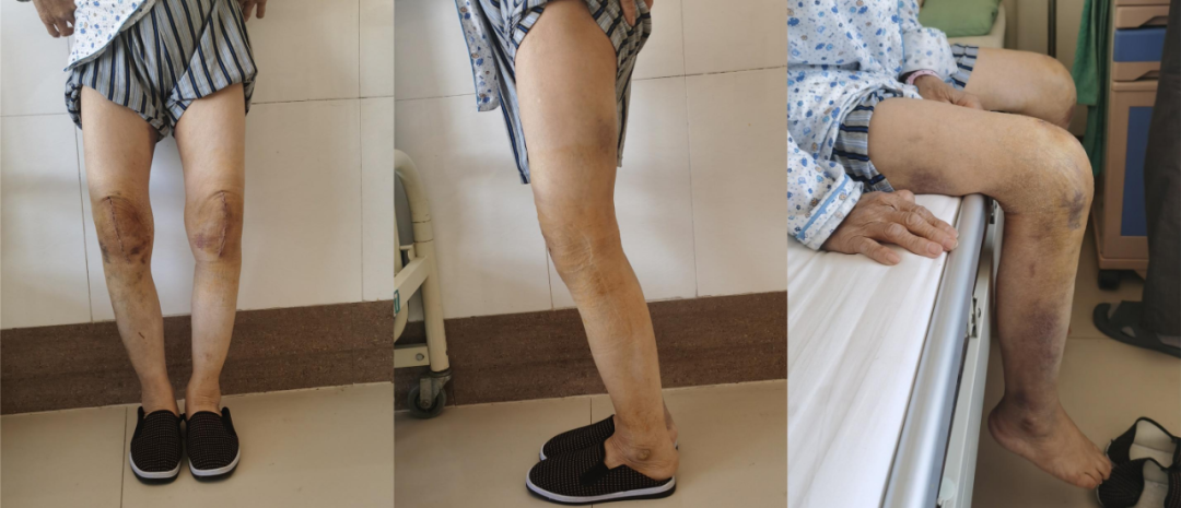 宁城县中心医院骨一科成功为一位高龄双膝重度骨性关节炎患者实施双膝关节表面置换术