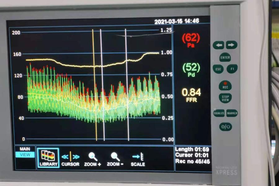广安市县级医院首例,FFR检查在岳池县人民医院心血管内科成功开展