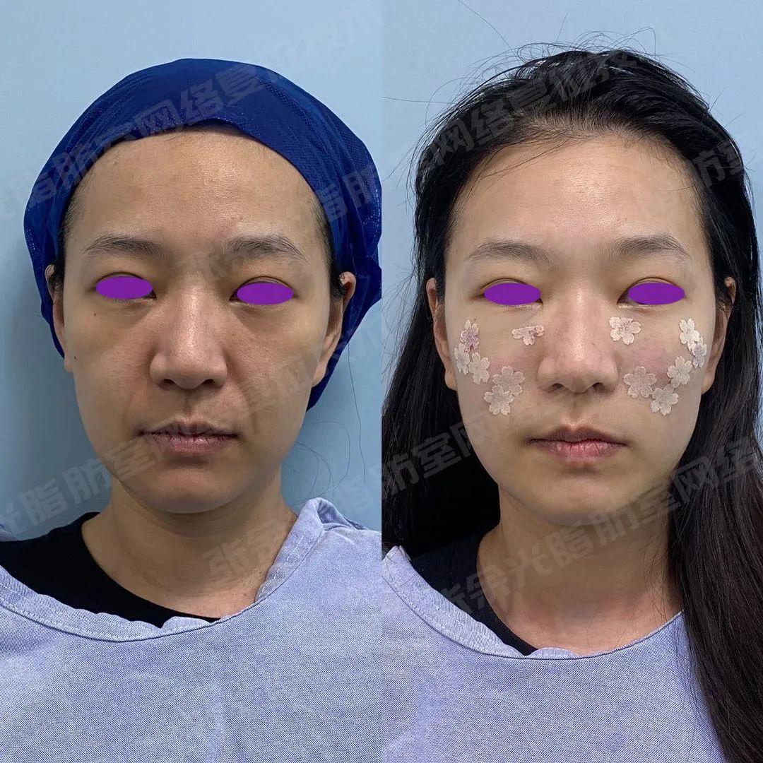 35 岁的人 18 岁的脸,他们到底是怎么做到的?