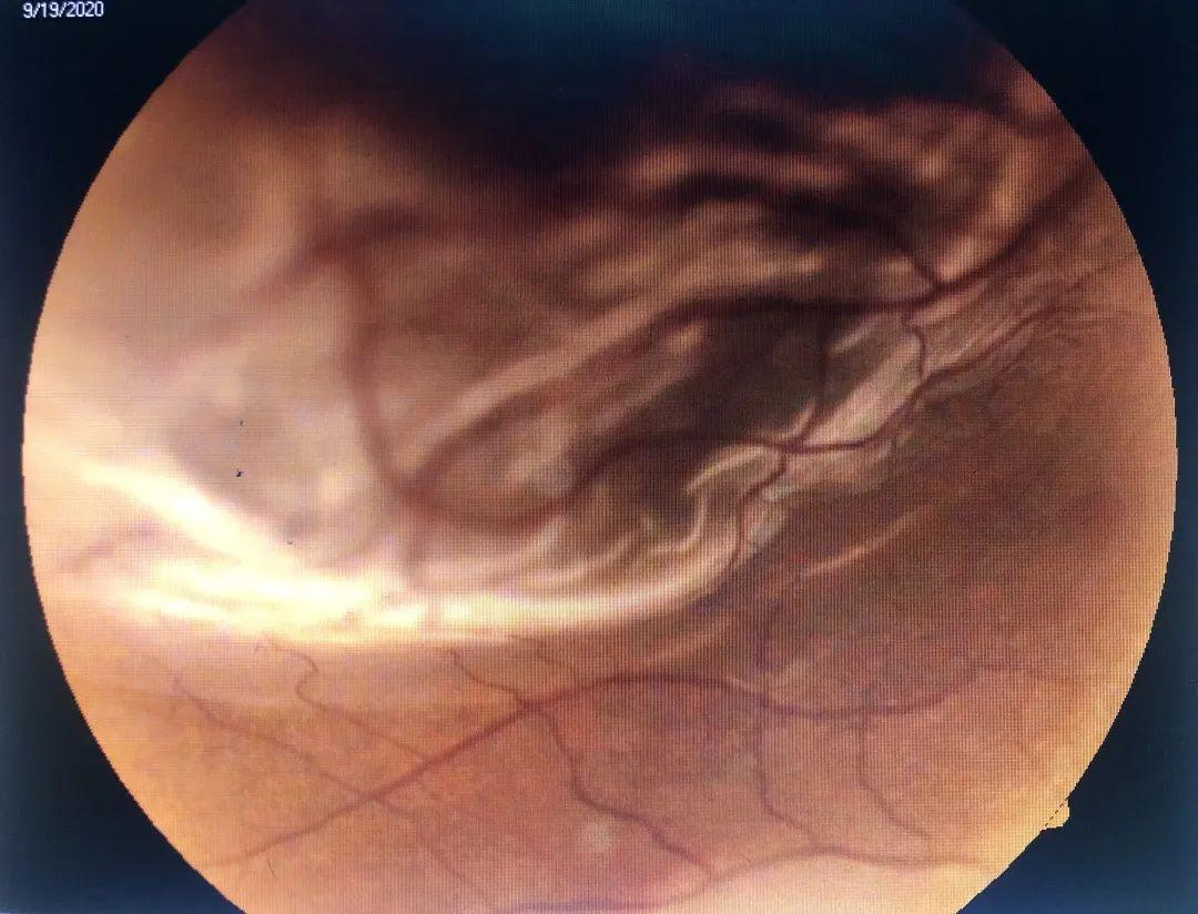 同济大学附属同济医院眼科为一孔源性视网膜脱离患者带来光明