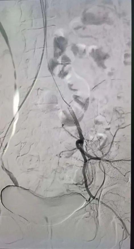 医学版「爬雪山过草地」:这两根子宫动脉「九曲十八弯」