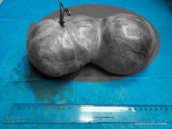 西安高新医院妇科为 61 岁肺癌患者取出 10 斤巨大卵巢肿瘤