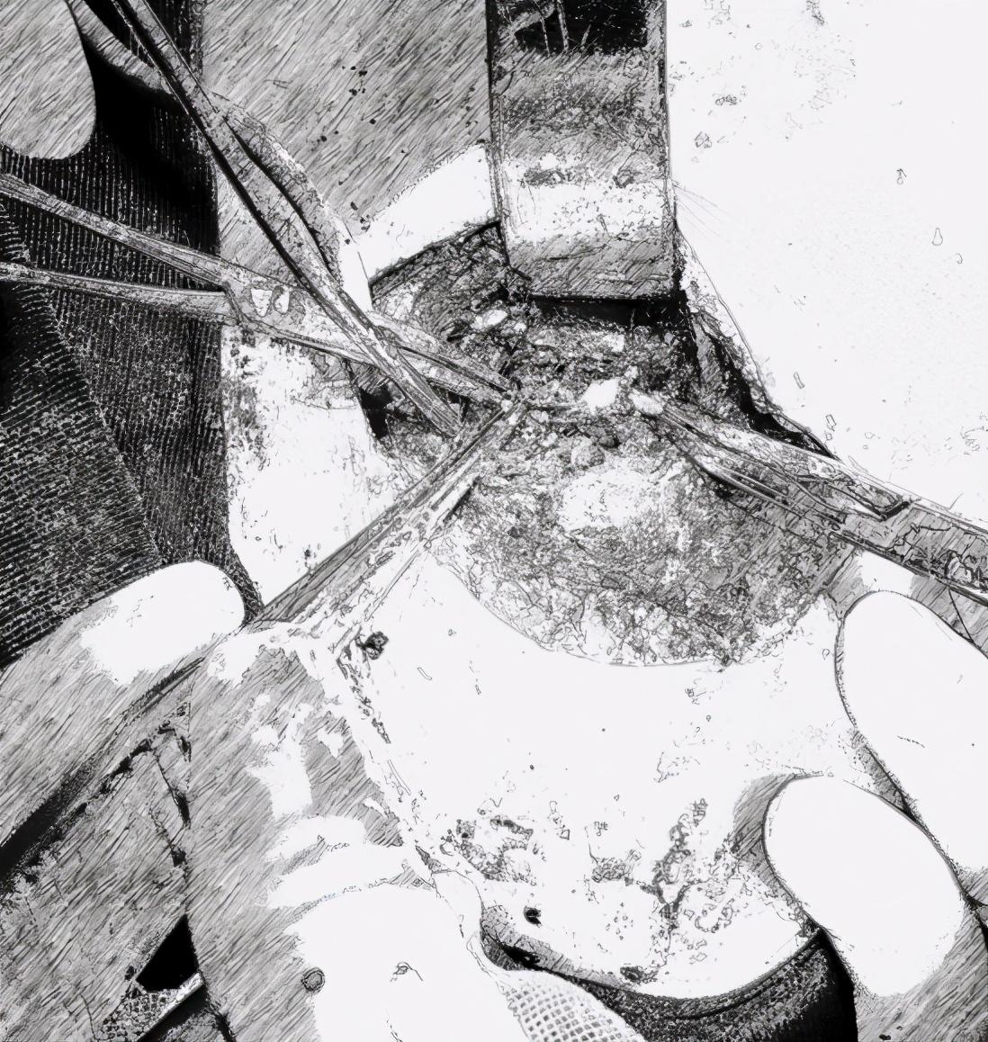 剪刀刺伤男童致大动脉破裂,江西省儿童医院奋力成功救治