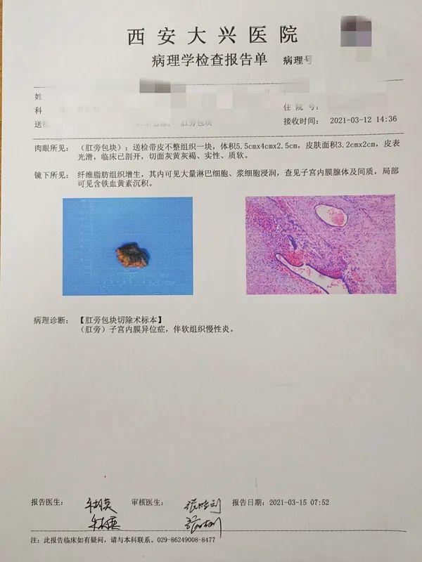 子宫内膜异位住进肛肠科!是不是搞错了?