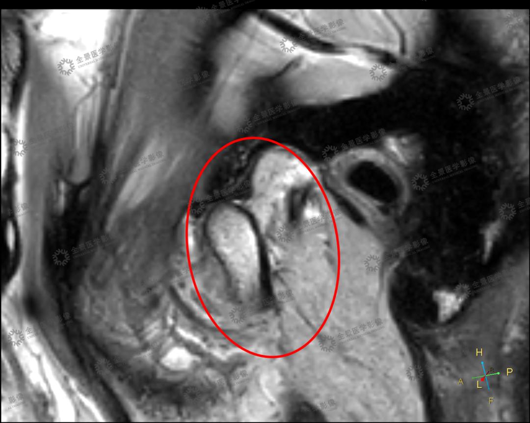 颞下颌关节紊乱案例 | 电影看到一半,嘴巴合不上了