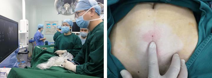 关爱女性健康,安和泰推出子宫肌瘤免费筛查公益活动