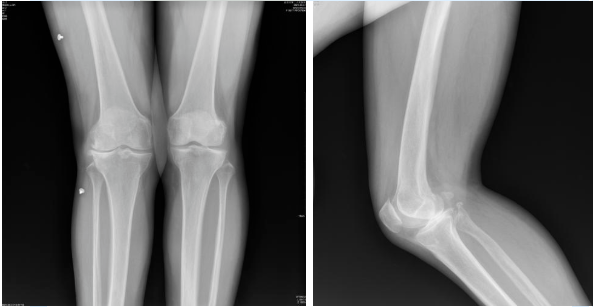 膝关节置换术的病例分享