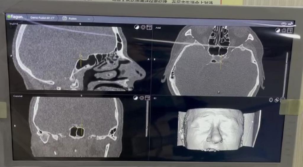 大脑有了 GPS,开颅手术不迷路——先进电磁导航系统落户绵阳市第三人民医院