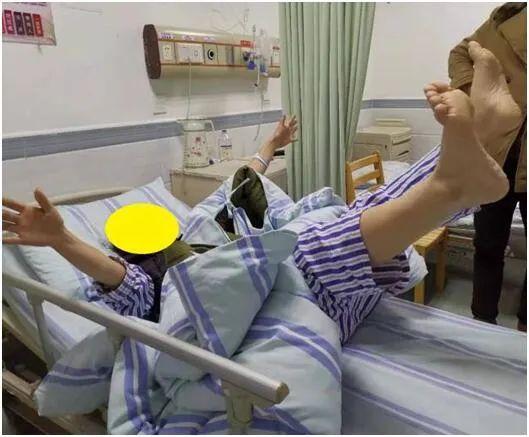 罗湖医院卒中中心成功快速救治颅内大血管闭塞性脑梗死患者
