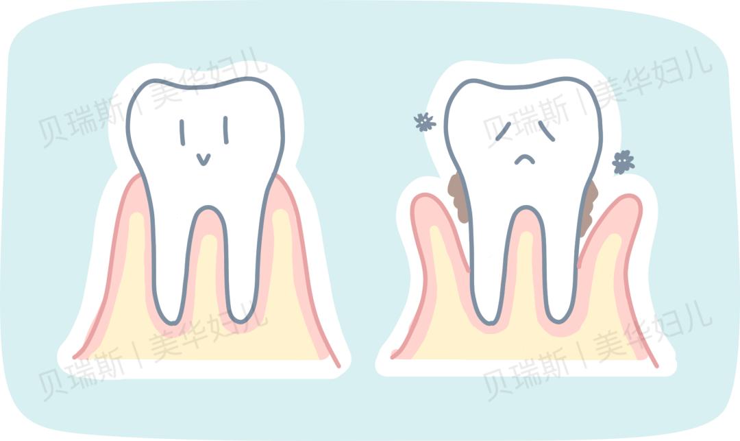 牙齿问题不容忽视,准妈妈更需谨慎对待