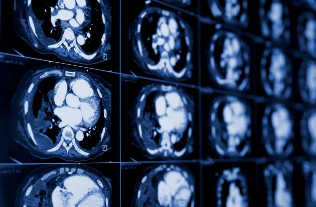「一眼识出」为罕见病:合肥京东方医院急诊科医生快速诊断 解除患者生命隐患