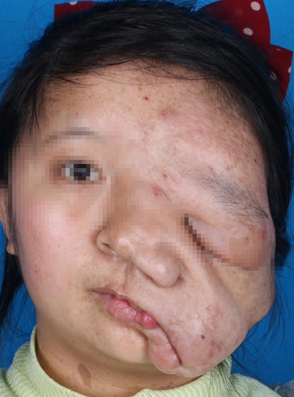 肿瘤将少女脸压变形,西安交大一附院多学科联手为她换新颜