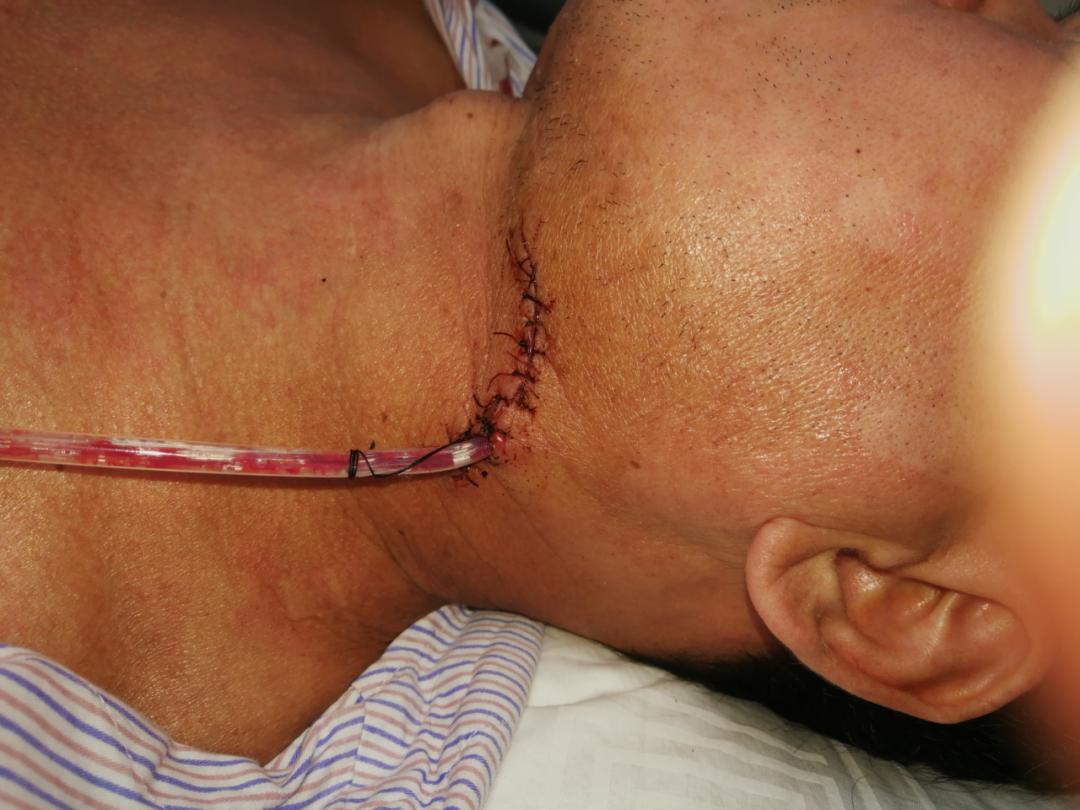 前海人寿广西医院耳鼻咽喉科成功为极罕见的马德龙综合征患者实施手术