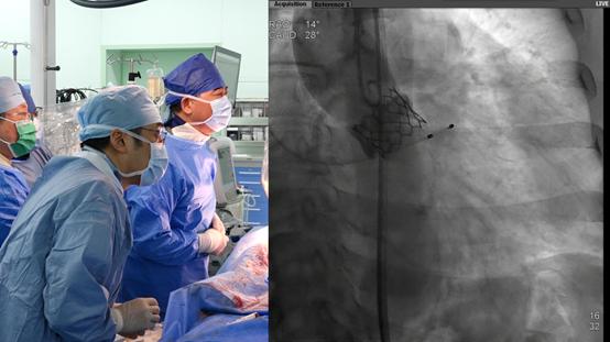 院士执刀,上海首例 SAPIEN 3 经导管主动脉瓣膜在上海德达医院成功植入