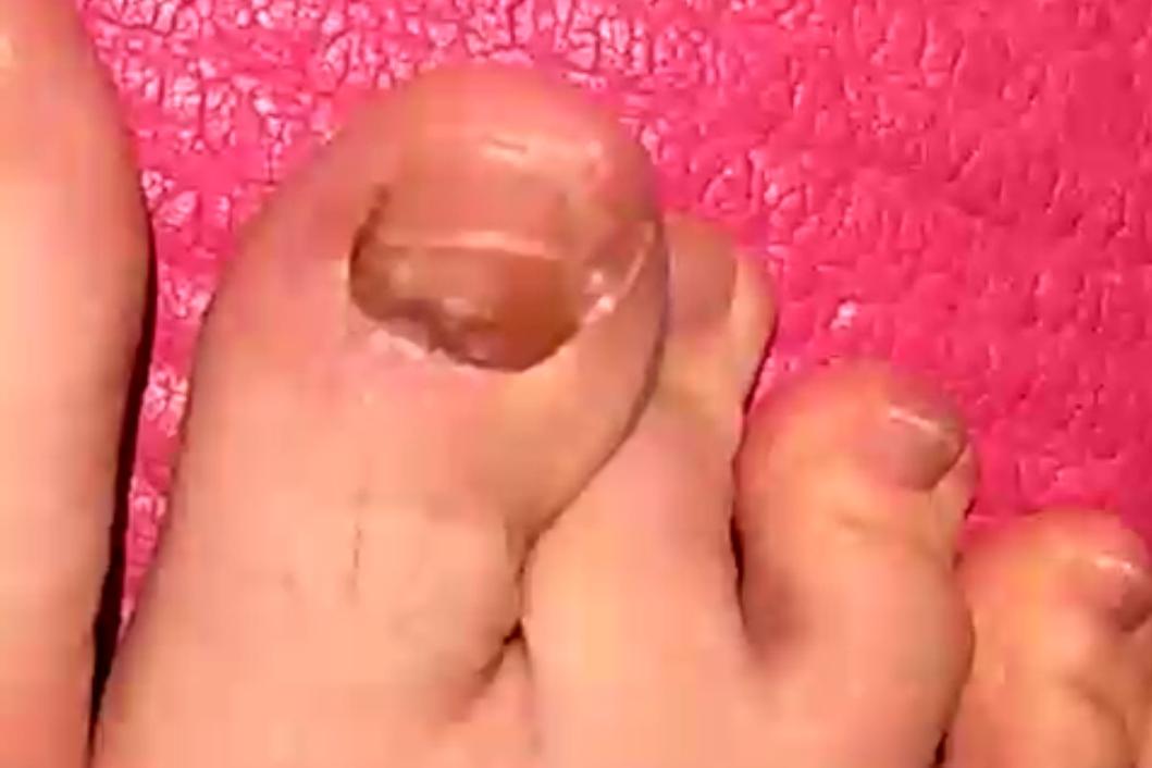 """上海一女子声称""""修脚被传染""""@郑远元修脚店"""