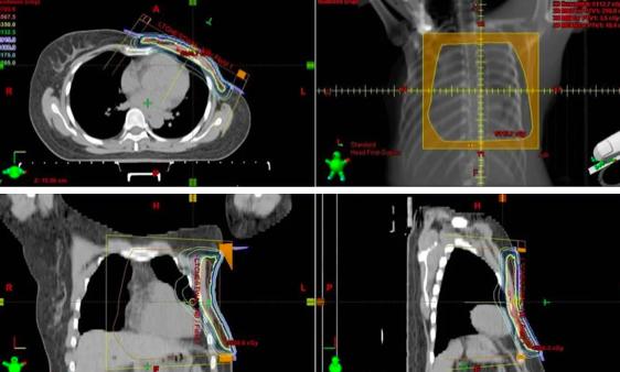 乳腺癌术后放疗,15 次和 25 次有什么区别?