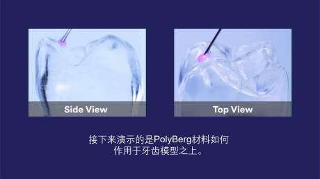 PolyBerg新技术,神奇的不可逆变色窝沟封闭剂