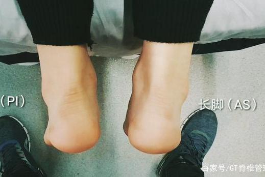 骨盆半脱位与长短脚的变化