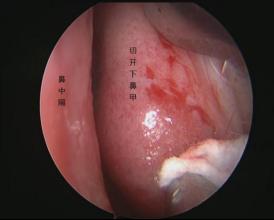 滨州医学院附属医院:新技术,新路径,体表无切口手术治疗颅底肿瘤!