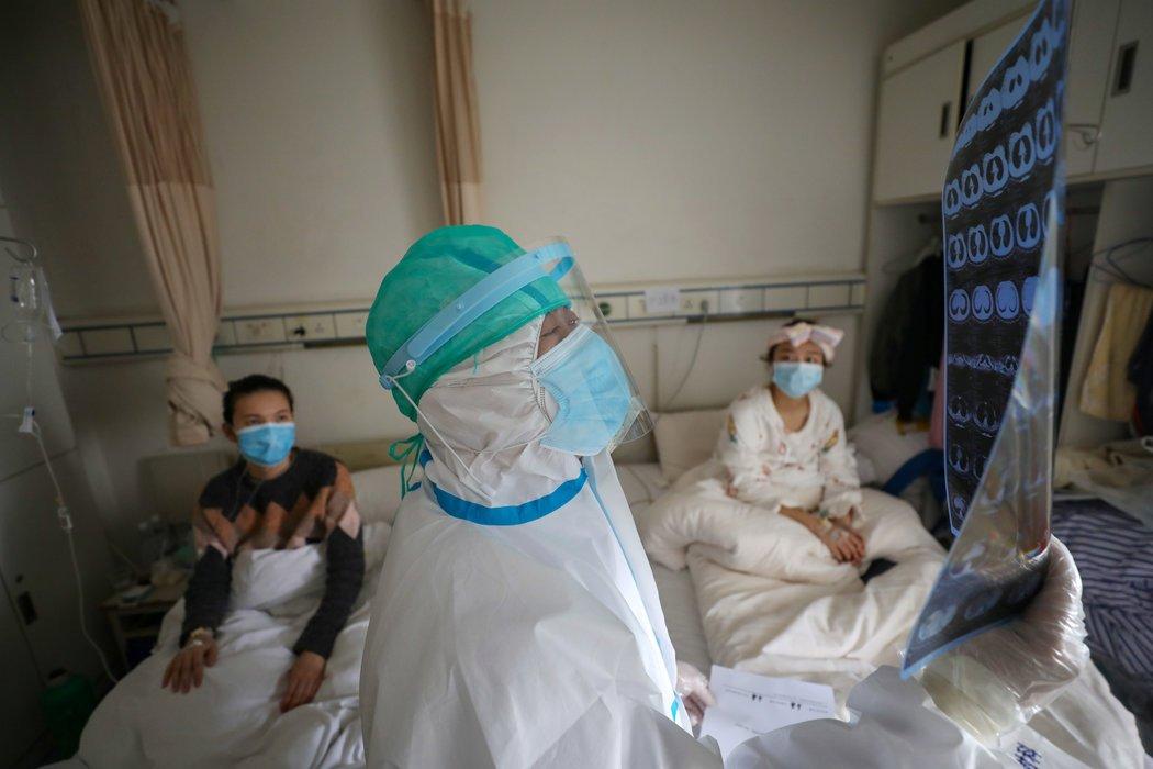 中国湖北省武汉市红十字会医院的一名医务人员在查看CT扫描结果。
